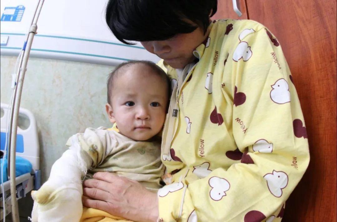 热粥烫伤1岁半男孩手 热情的青岛市平易近坐不住了!
