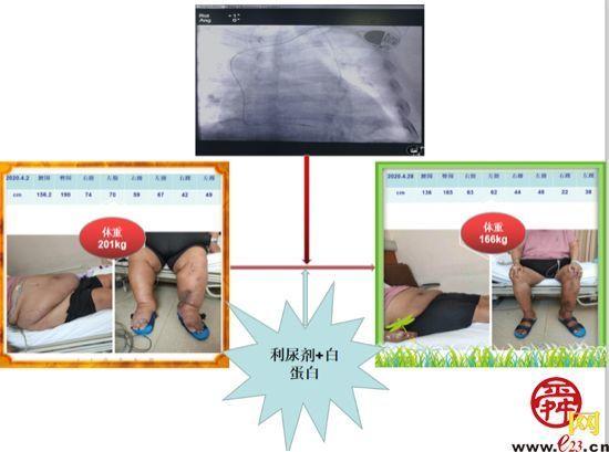 齐鲁医院首例!为过度肥胖且重度水肿患者置入永久性心脏起搏器