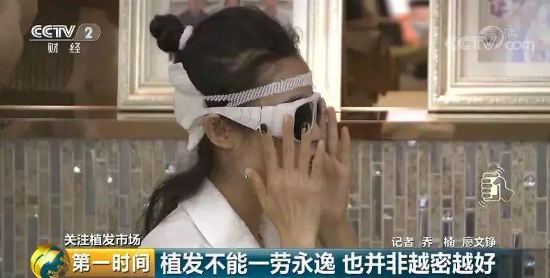 """中国脱发人群超2.5亿 植发能否挽救""""头顶大事""""?"""