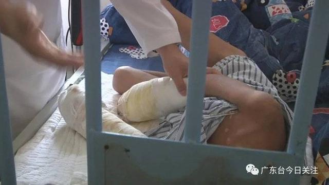 毫无人性!一男童遭亲父烟头烫伤双手面临截肢