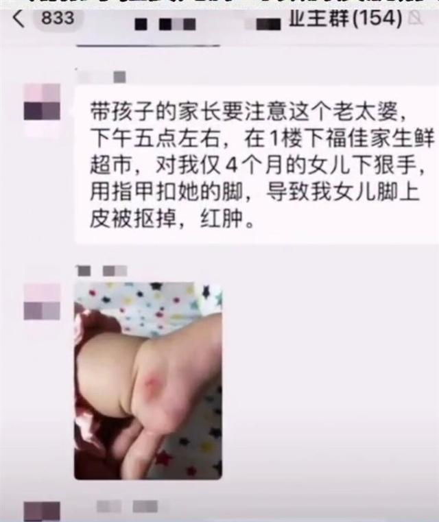 心肠恶毒!抠掉婴儿脚皮的大妈被厦门警方拘留