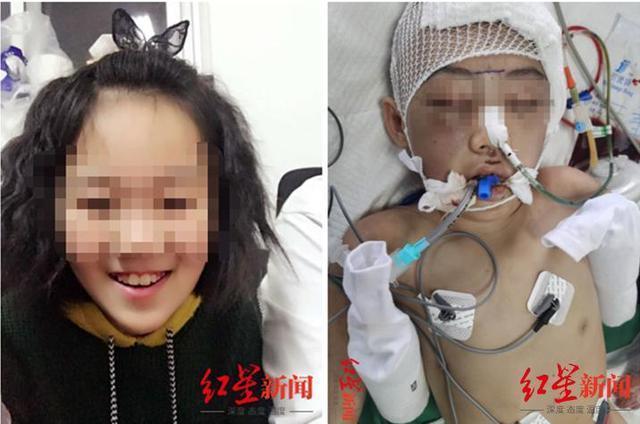 继母虐打女童致脑梗死被判无期 孩子目前仍处于植物人状态