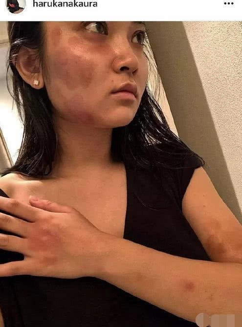 家暴改患了吗?蒋劲夫招认家暴 由女友的伤可看出蒋劲夫动手很重