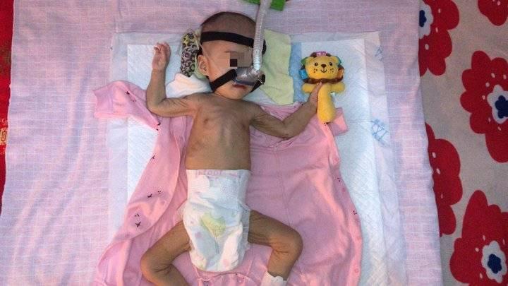 急需救命针!临沂一岁患病女童体重仅9斤,高昂医药费还差30万