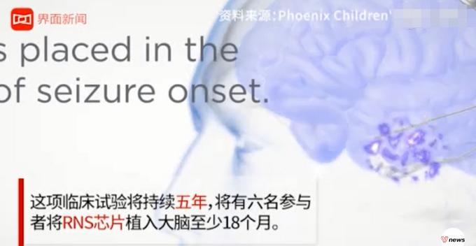 大腦中植入芯片減肥?外國科學家給過胖者植腦芯片:滅掉貪吃念頭