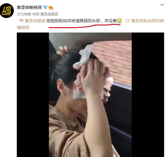 黄圣依拍戏时头部受伤,具体什么情况?发生了什么?