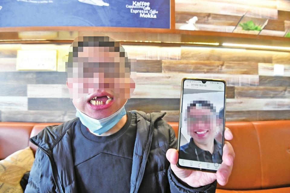只想修补两颗牙,却被磨坏16颗? 市民称未被告知具体诊疗方案 诊所表示经患者同意才实施的
