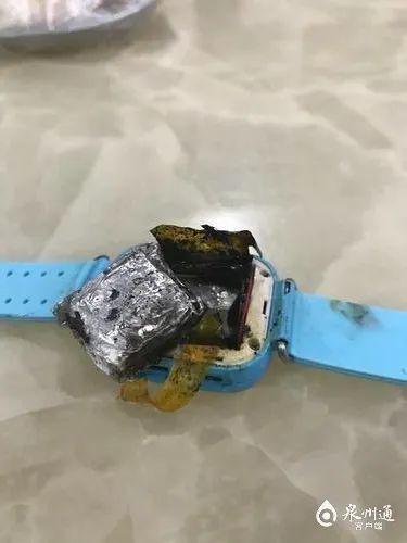 后怕!电话手表自燃,泉州一4岁女童手背被烧伤