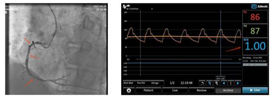 齐鲁医院心内科李大庆教授团队在省内率先应用冠脉内静息全周期比值(RFR)技术开展冠心病精准介入治疗