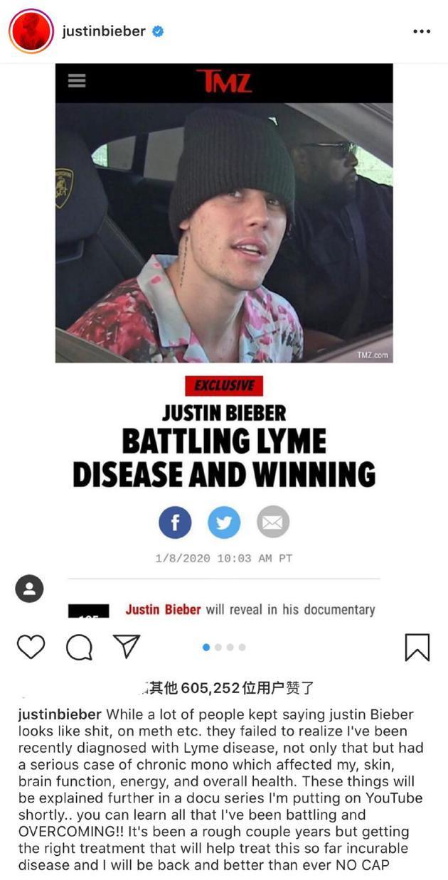 比伯自曝患上莱姆病 艾薇儿也得过 莱姆病到底是什么病?
