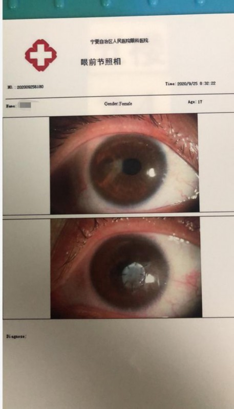 宁夏17岁女孩眼睛长螨虫,眼角膜穿孔,视力几乎丧失